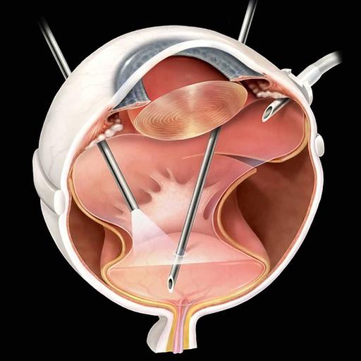 cirurgia catarata, lentes intraoculares, correcao vista cansada (presbiopia), cirurgia laser, lasik & prk, cirurgia da miopia, cirurgia astigmatismo